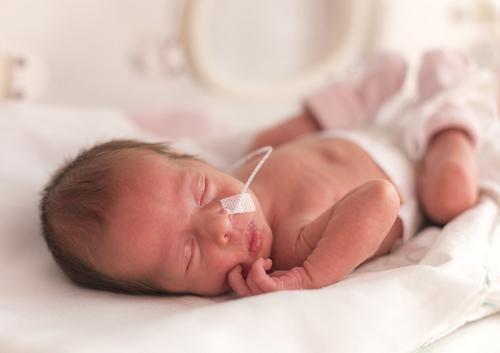 Tudo o que você precisa saber sobre bebês prematuros